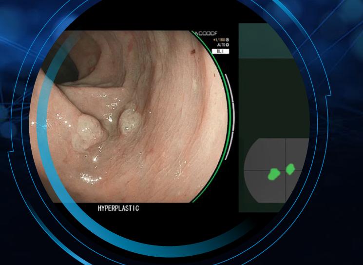 〈内視鏡診断支援機能「CADEYE™(キャドアイ)」を用いた最新のAI内視鏡検査〉