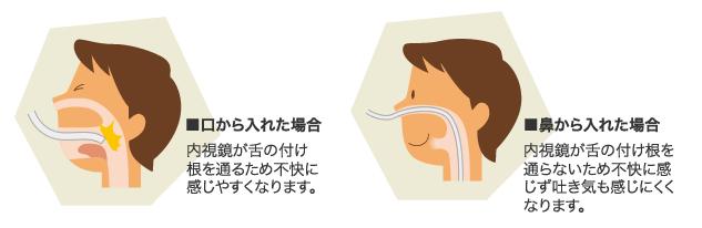 その1:「鼻」から挿入するからオエッとしない